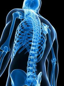 spinal fusion los angeles