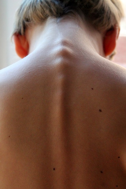 Hunchback Treatment in Encino